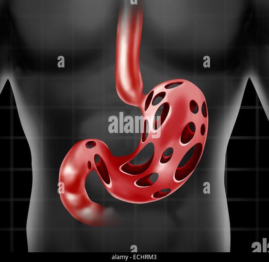Magen Problem medizinische Gesundheitsversorgung Konzept wie die menschliche Verdauung Orgel mit Löchern als Stockbild