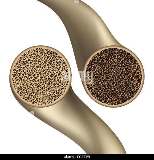 Knochen-Gesundheit-Symbol als Osteoporose medizinische Illustration Konzept zeigt eine Nahaufnahme der Vergleich Stockbild
