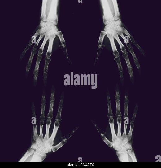 XRAY durch Erwachsene Hand und Handgelenk mit Radius und Ulna Knochen diagnostische Behandlung Finger Daumen Stockbild