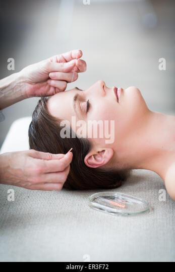 Frau empfangende Akupunktur. Stockbild