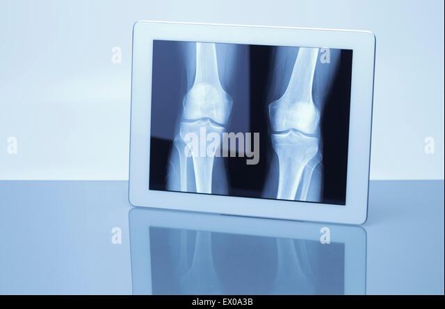 Digital-Tablette Röntgenbild Knie anzeigen Stockbild