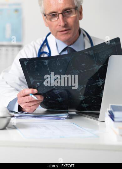 Arzt studiert Film Blatt der Computertomographie (CT) Scans der verschiedenen Abschnitte durch den menschlichen Stockbild
