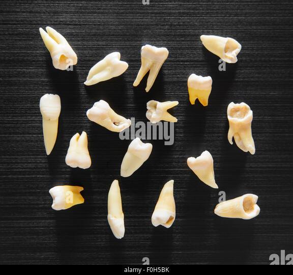 Extrahierte Zähne mit verschiedenen defekten Stockbild