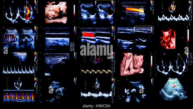 Zusammenstellung von 20 moderne Echokardiographie (Ultraschall) Maschine Monitor Farbbilder. Neue Krankenhaus-Ausrüstung Stockbild