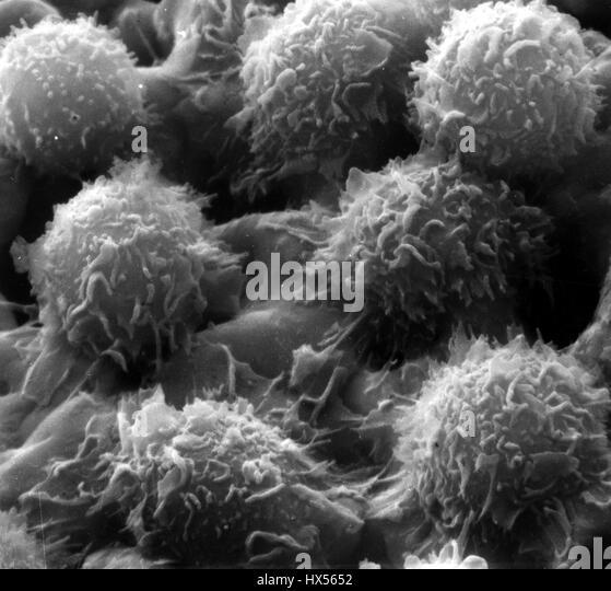 Ein Bild aus einem Mikroskop zeigt die typischen Merkmale der haarigen Zelle Leukämie-Zellen, 2014. Bild mit Stockbild