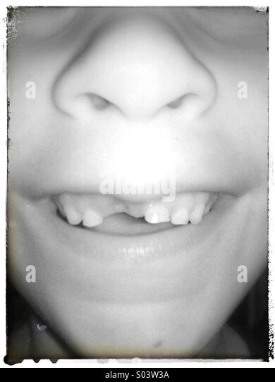 Kind mit fehlenden Zahn. Stockbild