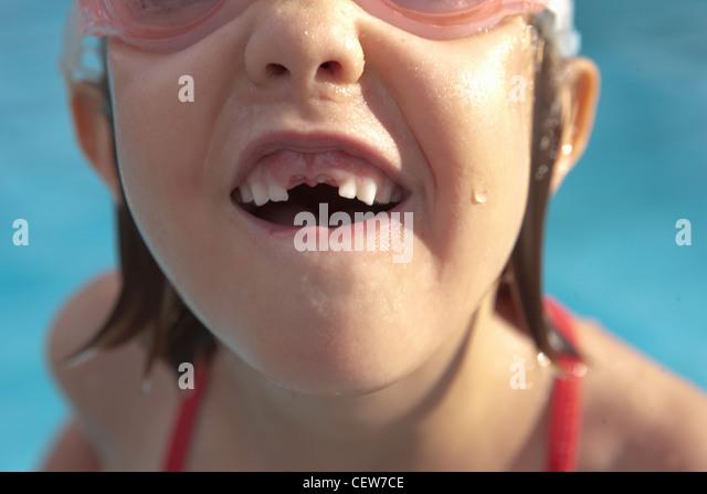 Primer plano de una niña con su falta de dientes frontales Imagen De Stock